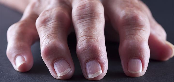 Reumatoloog naar de huisarts